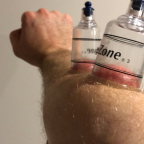 A Quick Fix to Hand, Forearm, and Elbow Pain (Video)