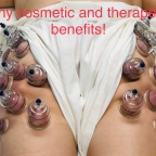 Can Cupping Really Help with Cellulite Reduction?